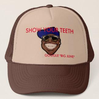あなたの歯の帽子を示して下さい キャップ