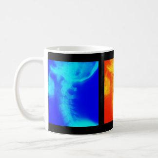 カイロプラクティックのコーヒーカップ、タンブラーおよびジョッキ コーヒーマグカップ