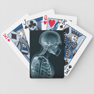 カードを遊ぶフットボールのX線 バイスクルトランプ