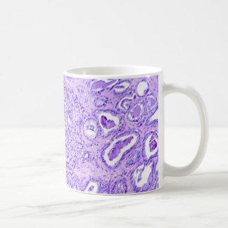 コーヒーマグ前立腺の蟹座 コーヒーマグカップ