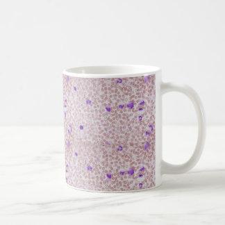 コーヒー・マグ-慢性のMyeloid白血病 (CML) コーヒーマグカップ