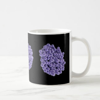 コーヒー・マグ- MRSA (黒い背景ですみれ色) コーヒーマグカップ