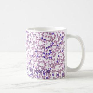 コーヒー・マグCLLの血パターン コーヒーマグカップ