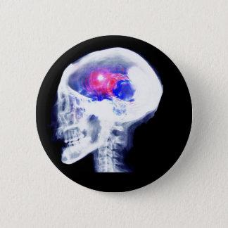 サイボーグの頭脳 5.7CM 丸型バッジ