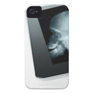 スタジオはX線が付いているデジタルタブレットのの撃ちました Case-Mate iPhone 4 ケース