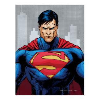 スーパーマンの地位 ポストカード