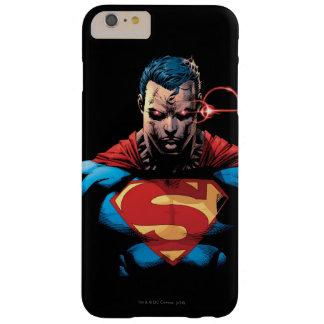 スーパーマン-レーザーの視野 BARELY THERE iPhone 6 PLUS ケース