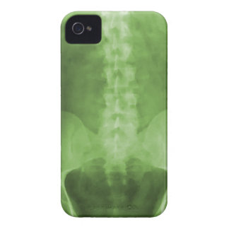 デジタルX線の芸術のiPhone 4/4sの場合 Case-Mate iPhone 4 ケース