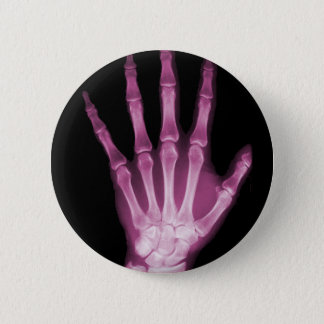 ピンクのX線の骨組手 5.7CM 丸型バッジ