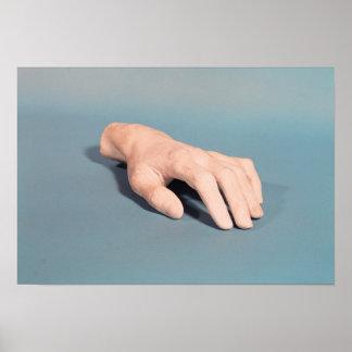 フレデリックショパンの手の鋳造物 ポスター