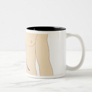 レバー移植 ツートーンマグカップ