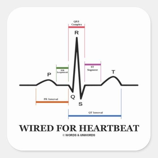 ワイヤーで縛られる|心拍|(心電図) 正方形シール・ステッカー