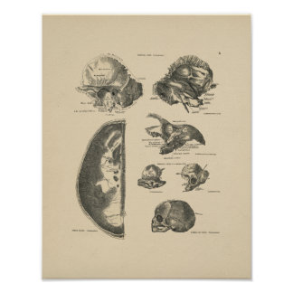 ヴィンテージの人間のスカルの骨1880のプリント ポスター