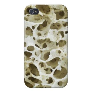 人間の情報通の骨からの拡大された多孔性の質 iPhone 4/4S CASE