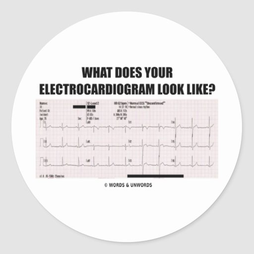 何||あなたの|心電図|見て下さい|のようにか。 丸形シールステッカー