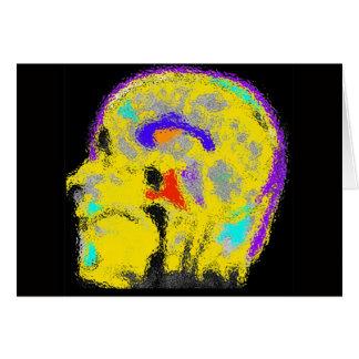 印のcolorized MRI カード
