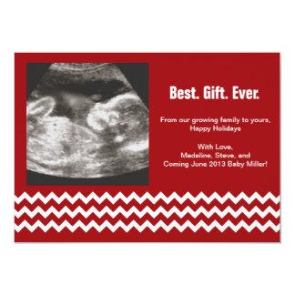 妊娠のクリスマスカードの超音波の発表 カード