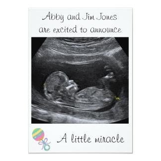 小さい奇跡の~の妊娠の発表 カード