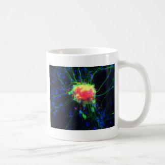 後根神経節 コーヒーマグカップ