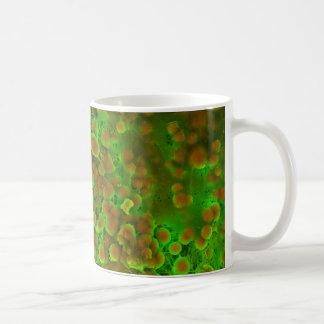 心血管の石灰化の顕微鏡の終わり コーヒーマグカップ