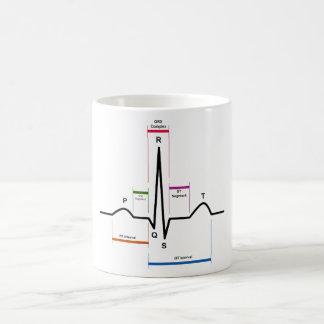 心電図ECGの図表の湾曲のリズム コーヒーマグカップ