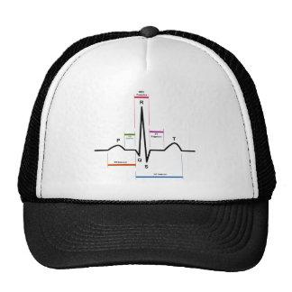 心電図ECGの図表の湾曲のリズム トラッカー帽子