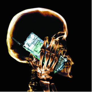 携帯電話のX線の骨組 写真彫刻(台付き)
