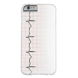 方眼紙のEKGの心拍、PhD (医者)の脈拍 Barely There iPhone 6 ケース