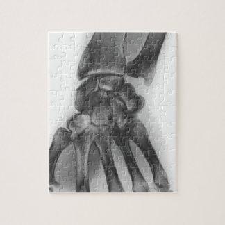 正常な手首、X線 ジグソーパズル
