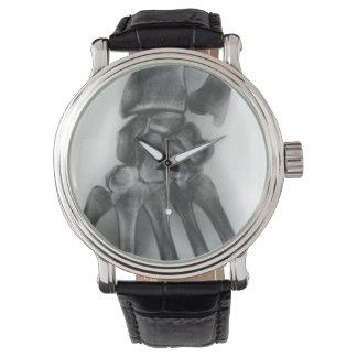 正常な手首、X線 腕時計