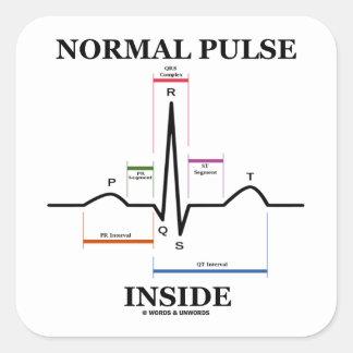 正常 脈拍 中 (ECG/EKG 心電図) 正方形シールステッカー