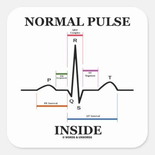 正常|脈拍|中|(ECG/EKG|心電図) 正方形シールステッカー