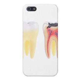 歯の解剖学 iPhone 5 CASE