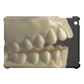 歯科モデル iPad MINI カバー