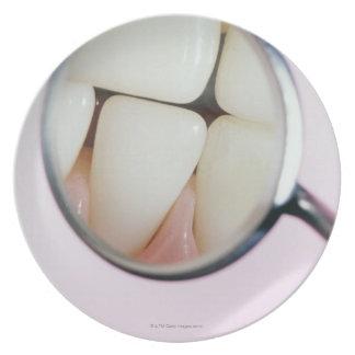 歯科鏡に反映される歯のクローズアップ プレート