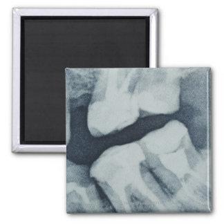 歯科X線のクローズアップ マグネット