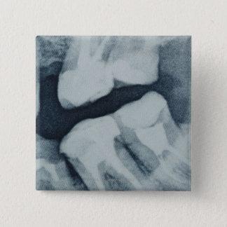 歯科X線のクローズアップ 5.1CM 正方形バッジ