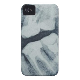 歯科X線のクローズアップ Case-Mate iPhone 4 ケース