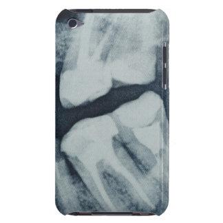 歯科X線のクローズアップ Case-Mate iPod TOUCH ケース