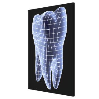 歯、モルの歯のコンピュータアートワーク キャンバスプリント