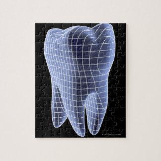 歯、モルの歯のコンピュータアートワーク ジグソーパズル