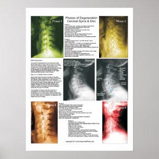 段階の頚部背骨の退化ポスター ポスター