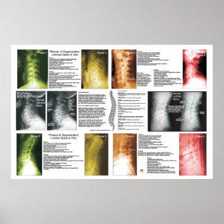 段階の頚部腰神経の背骨の退化ポスター ポスター