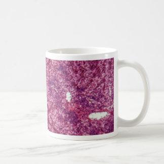 癌が付いている人間のレバー細胞 コーヒーマグカップ