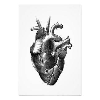 白黒ハートの芸術のプリント(小さい) フォトプリント