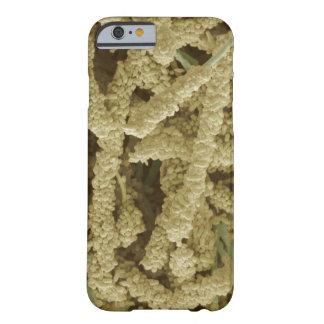 着色される細菌のプラク形成2つをスキャンすること BARELY THERE iPhone 6 ケース