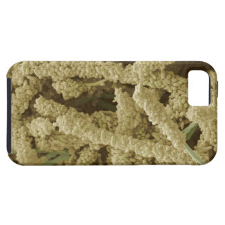 着色される細菌のプラク形成2つをスキャンすること iPhone SE/5/5s ケース