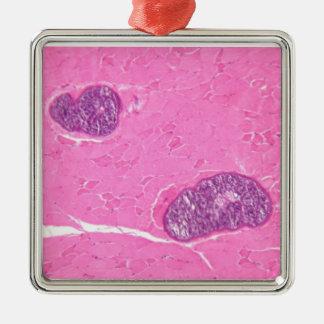 筋肉ティッシュのSarcocystisの寄生虫 メタルオーナメント