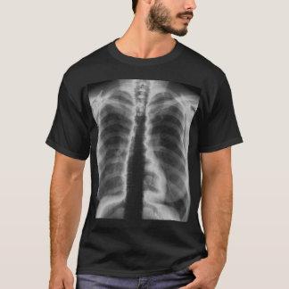 箱x光線 tシャツ