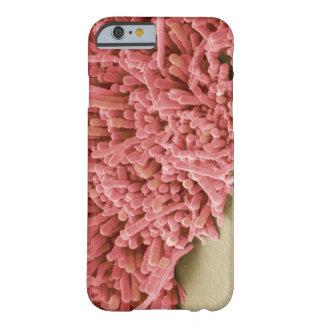 細菌のプラク形成、着色されたスキャン BARELY THERE iPhone 6 ケース